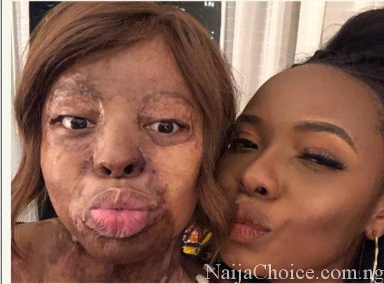 Plane Crash Survivor Hangs Out With Yemi Alade, Victoria Kimani