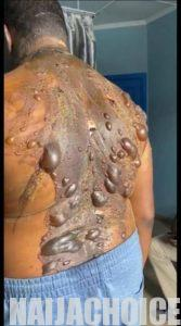 Wife Pours Hot Water On Husband For Buying Phone For His Side Chick (Graphic Photos)